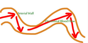 Diagram of artery with arrows representing directional blood flow damage