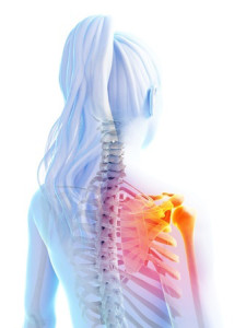3-D transparent drawing of a woman with an inflamed scapula due to weak muscles and fibromyalgia