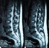 MRI Of Lumbar Spine Disc Herniation
